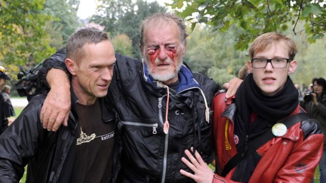 Stuttgart 21 - Demonstrant droht zu erblinden
