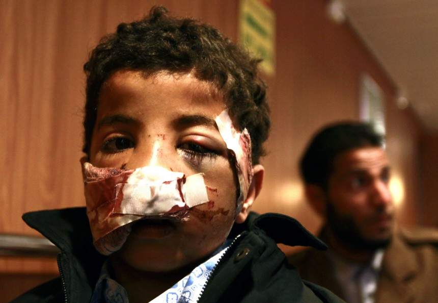 Muftah, 9, injured in the face by shrapnel in Misrata last week, arrives onboard the Greek ferry 'Ionian Spirit' in the port of Benghazi