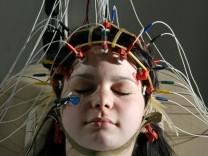EEG - Diagnosen sollten nicht nur per Technik erfolgen
