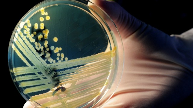 Institut: EHEC-Ausbruch ist beendet - 50 Tote