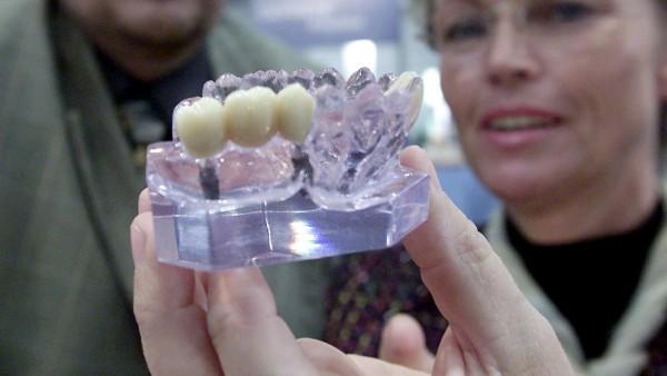 Kiefermodell mit Implantaten
