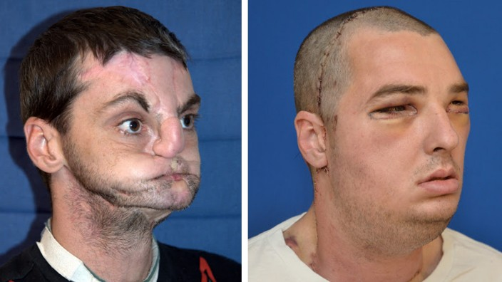 MOST EXTENSIVE FULL FACE TRANSPLANT