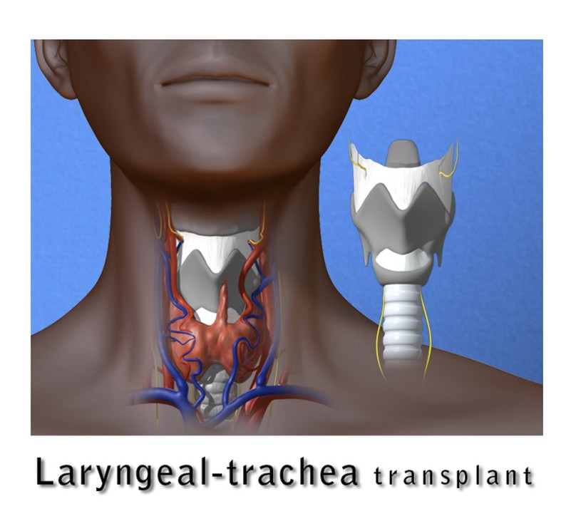 An illustration depicting the laryngeal-trachea transplant performed on patient Brenda Charett Jensen is shown in this undated publicity photograph