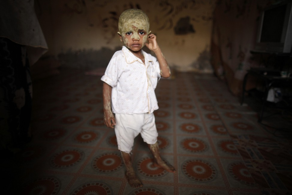 Three-year-old Muhammad Nasser has his face covered with a traditional medicine to heal skin rush in his family's shelter at a school in the southern Yemeni port city of Aden