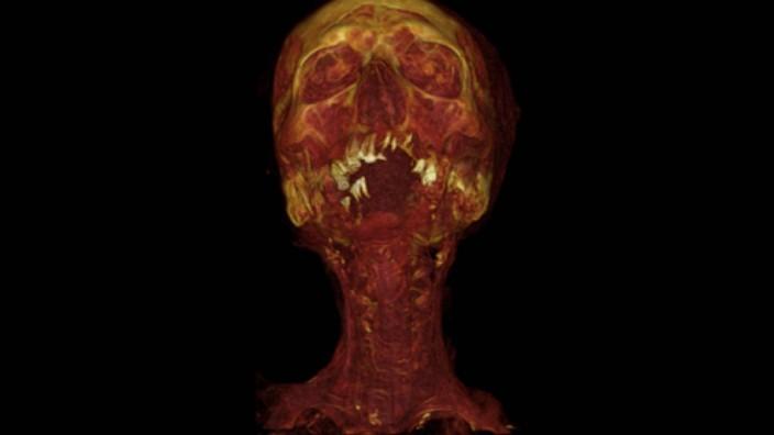Mumie mit Atherosklerose