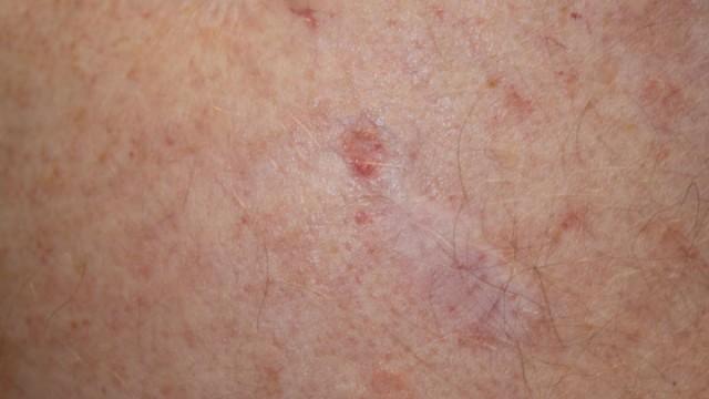 Weißer hautkrebs heilungschancen Weißer Hautkrebs