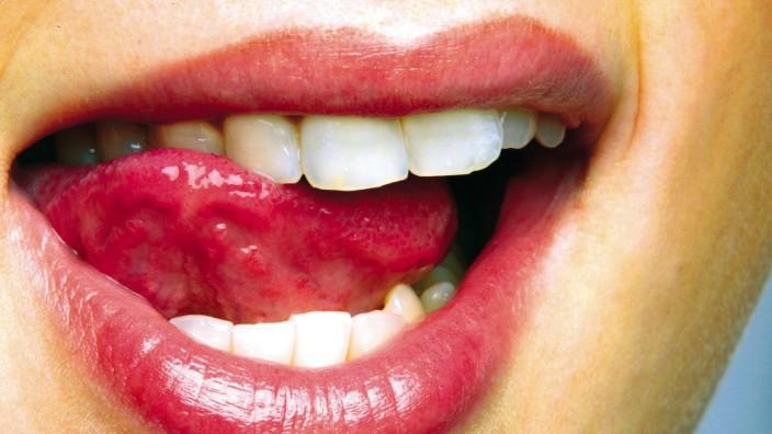 Stammzellforscher wollen Zähne nachwachsen lassen.