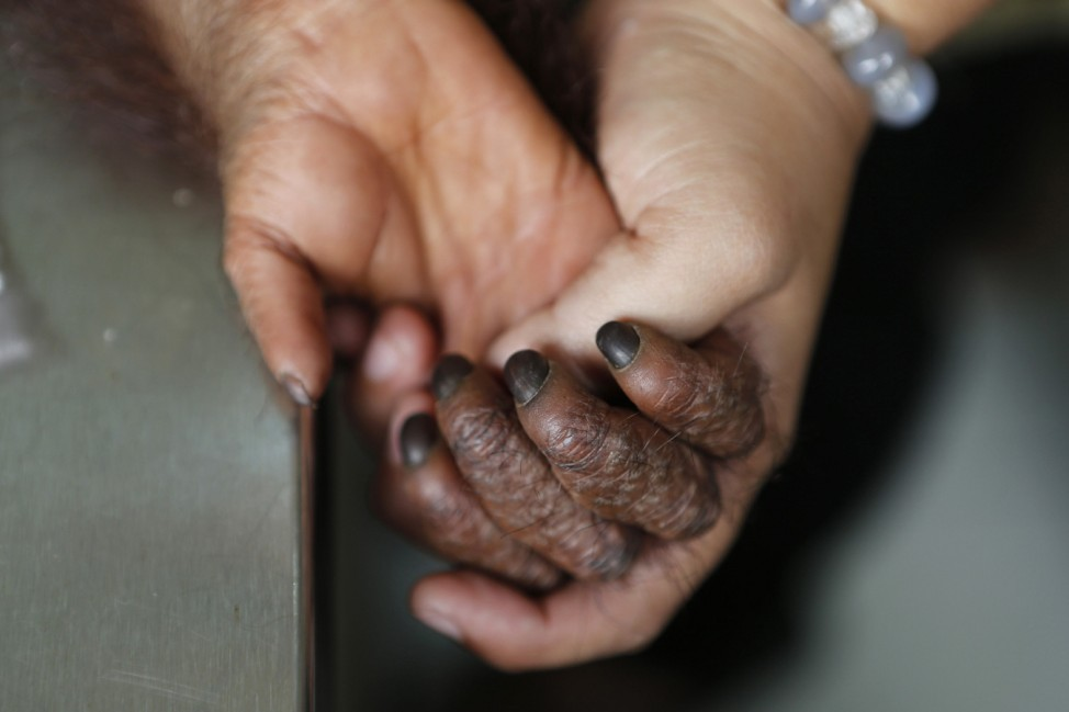 The hand of an Orangutan named Hang Lipo, aged 1 year and 6 months, is seen as blood samples are taken from him by Orangutan Island staff in Perak