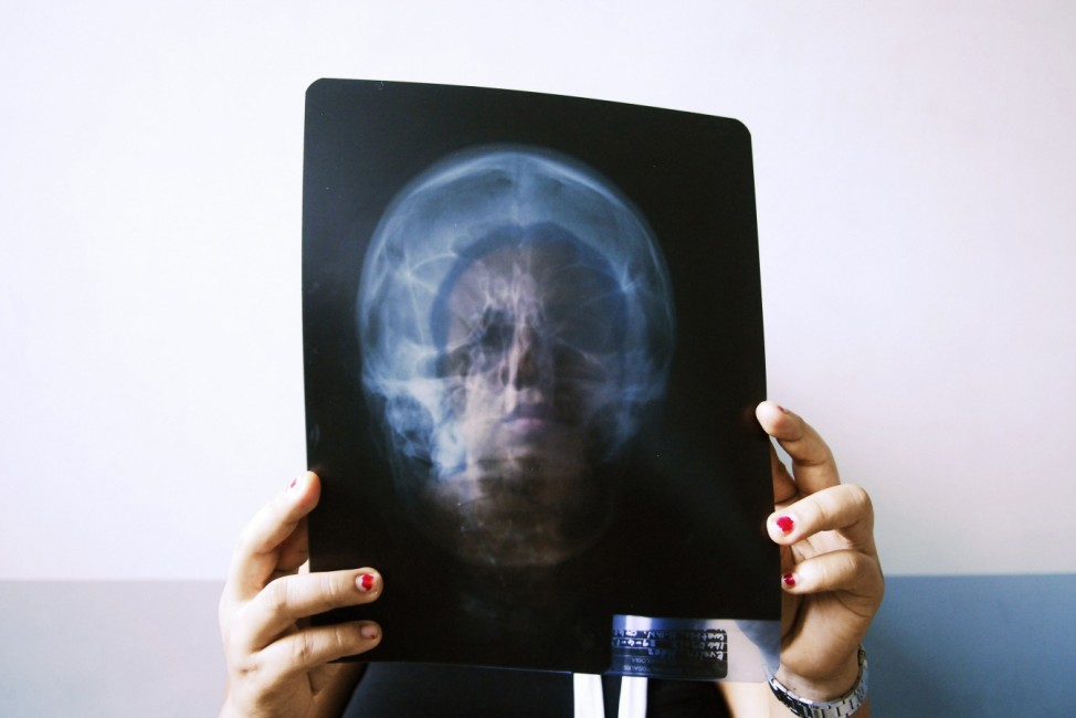 Evelyn Hernandez Sanchez holds an X-ray of her skull at the facial surgery unit at the Rosales hospital in San Salvador