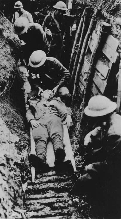 Erster Weltkrieg Westfront Verwundeter Frankreich Pierrefonds