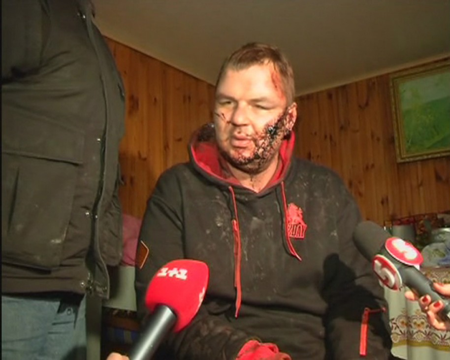 Bulatov, 35, one of the leaders of anti-government protest motorcades called 'Automaidan', speaks to journalists after being found near Kiev