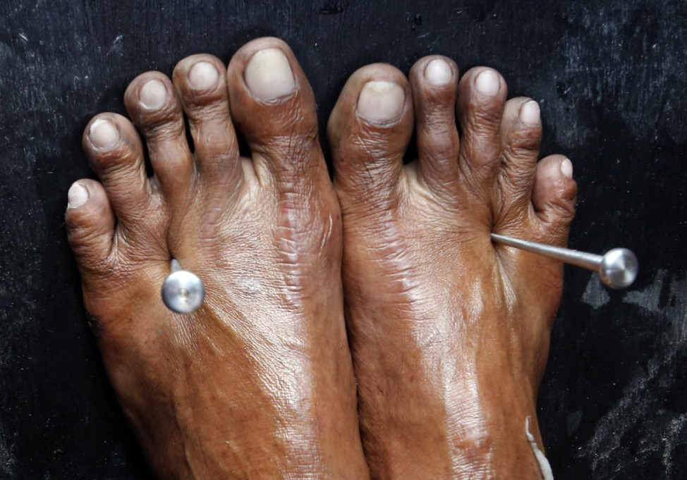 Two five-inch stainless steel nails pierce through the feet of a penitent during a Good Friday ritual re-enacting the crucifixion of Jesus Christ in San Fernando, Pampanga