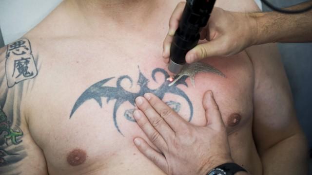 Tattoo Entfernung