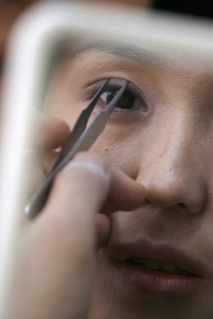 Man operieren größer kann augen Augenlasern: Voraussetzungen