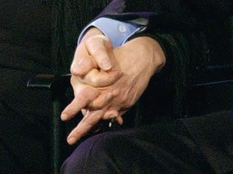 Hand, dpa