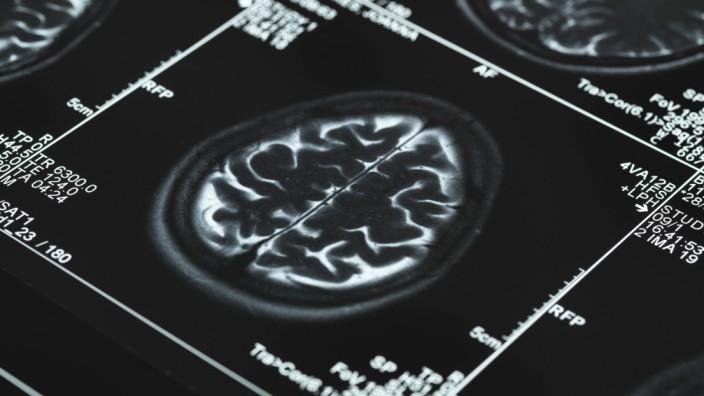 MRI brain scans Series of MRI Magnetic Resonance Imaging brain scans PUBLICATIONxINxGERxSUIxHUNxO