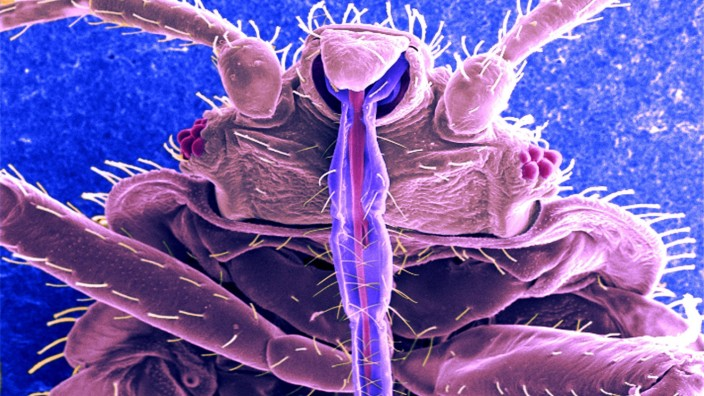 Bedbug sem This digitally colorized scanning electron micrograph SEM revealed some of the ultrastr
