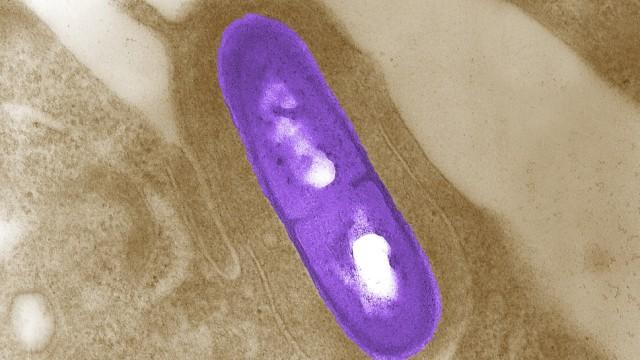 Listerien unter einem Elektronenmikroskop