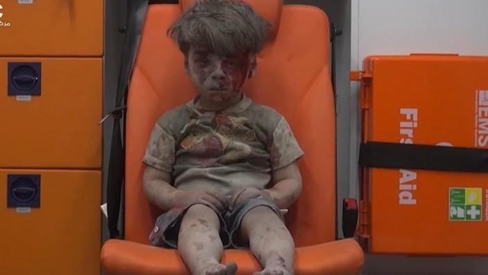 Das Bild des fünfjährigen Jungen, der am Mittwoch bei einem Luftangriff verwundet wurde, löst große Anteilnahme aus.