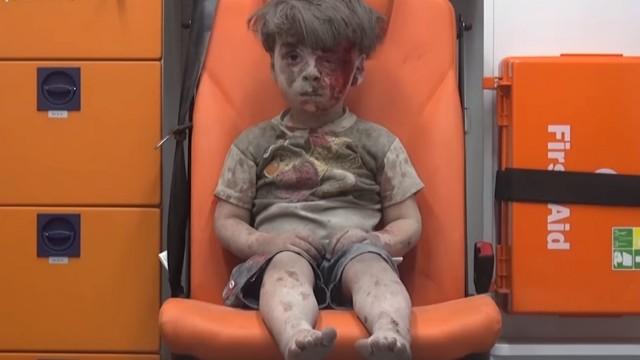 Verwundeter Junge aus Aleppo
