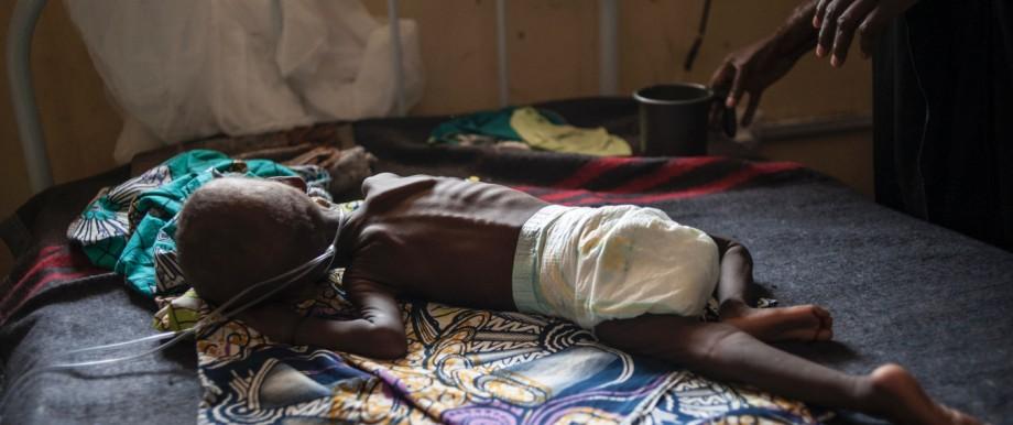 Millenniumsziele: Vor allem Kinder leiden unter der Unterernährung. Laut dem UN-Generalsekretär ist das Leben von 20 Millionen Menschen in den kommenden Monaten allein in Somalia, Südsudan, Nigeria und Jemen bedroht. (Archivbild vom September 2016)