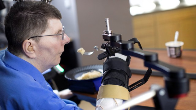 Bill Kochevar is using computer-brain interface technology and an electrical stimulation system to move his own arm after eight years of paralysis, in this undated handout photo