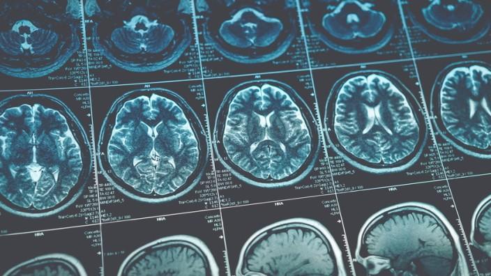 Medizin: MRT-Aufnahmen eines Gehirns (Symbolbild)