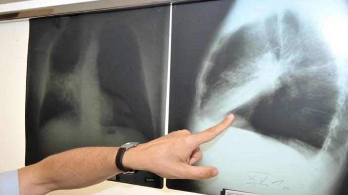 Lungenkrebs-Diagnose anhand eines Röntgenbilds