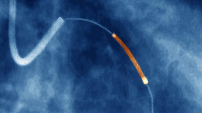 Coronary angioplasty, X-ray