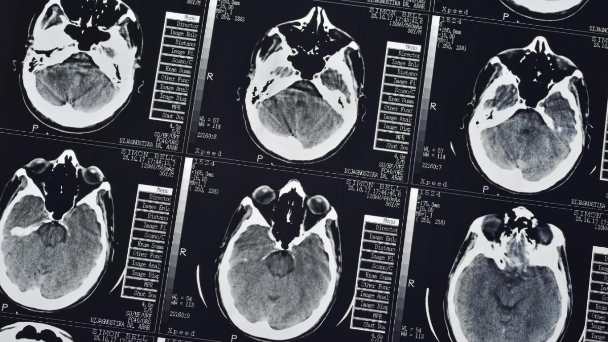 Radiologie-Kette wird von Krankenkasse verklagt