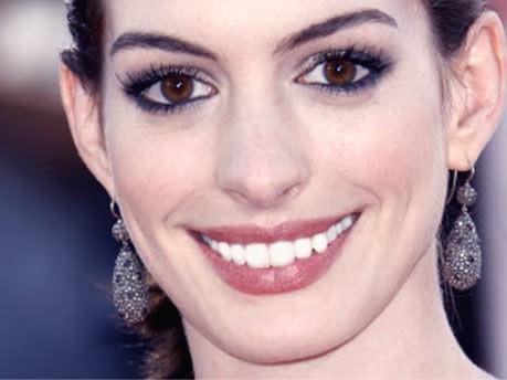 Anne Hathaway; Zahnbleaching
