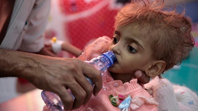 Jemen - ein Vater gibt seiner hungernden Tochter zu trinken