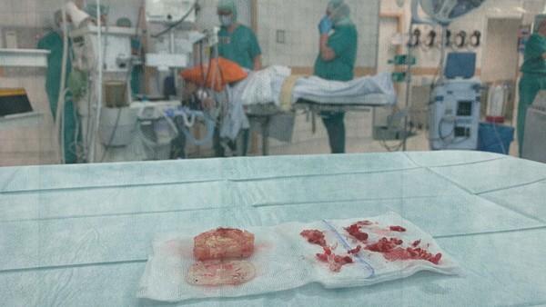 Implantate in einem OP