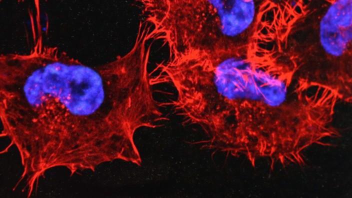 Krebs: Krebszellen auf einem Monitor