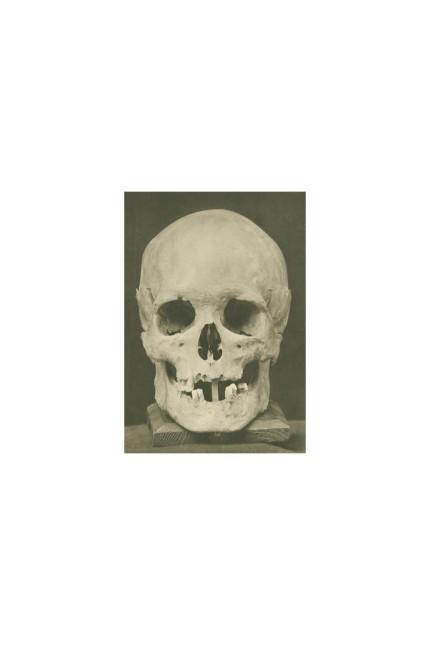 """Klassik: Dieser 1894 ausgegrabene """"Bach-Schädel"""", der in der Ausstellung als Abguss gezeigt wird, ist zweifelhaft."""