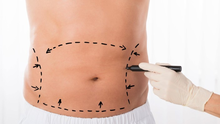 Person Hands Drawing Correction Lines On Stomach model released Symbolfoto PUBLICATIONxINxGERxSUIxAU