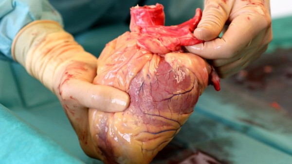 Organspende: Mediziner hält Herz in der Hand