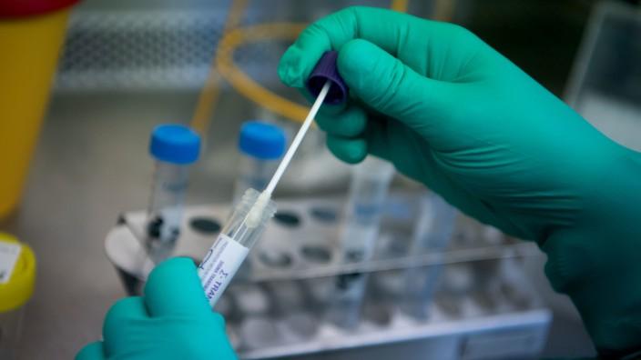 Coronavirus: Labortests auf Covid-19