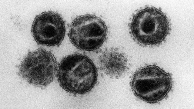 Zweiter HIV-Patient wahrscheinlich geheilt