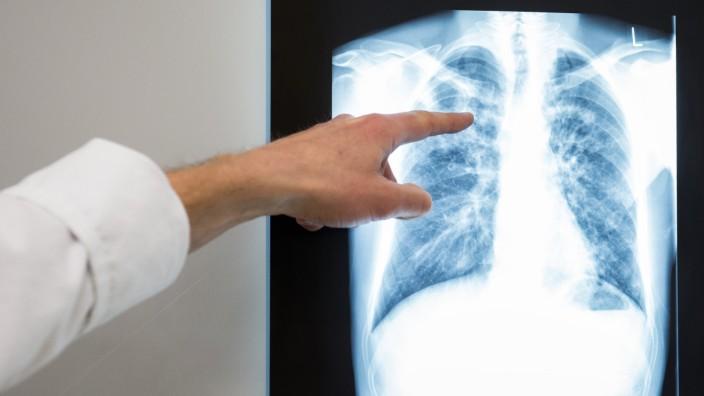 Röntgenbild Lunge