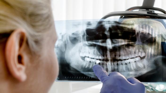 Besser als ihr Ruf: Die Wurzelbehandlung kann Zähne retten