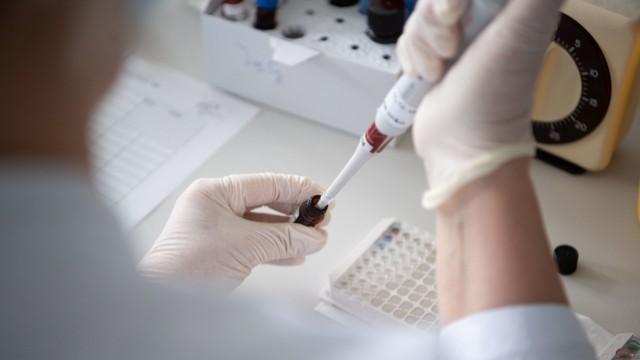 Blutuntersuchung im Landesgesundheitsamt