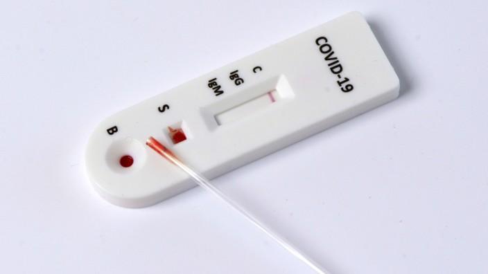 Coronavirus Antikörper Test