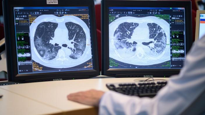 Coronavirus: Untersuchung einer Lunge eines Covid-19-Patienten
