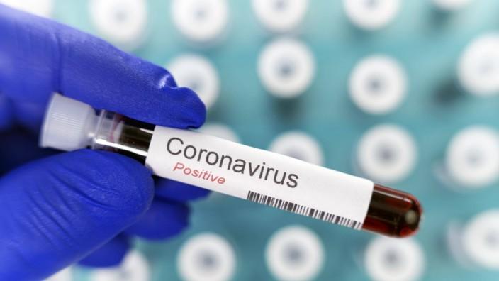 Laborarzt hält ein Reagenzglas mit positivem Ergebnis des Coronavirus-Tests in der Hand, im Hintergrund viele Blutröhrc
