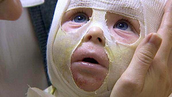TV: Heilung unerwünscht: Augen, Nase, Mund - und viel kaputte Haut: Die Zahl der Kinder, die unter Neurodermitis leiden, wächst stetig. Dabei gibt es offenbar seit Jahren ein Mittel, das wirkt. Doch die Arzneimittelbranche will es nicht produzieren.