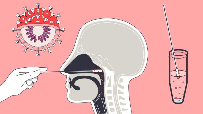 So funktionieren PCR-Tests auf das Coronavirus - Gesundheit - SZ.de