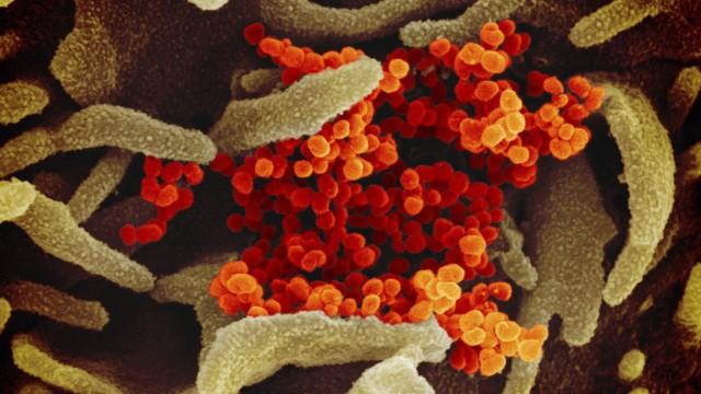 """Coronavirus """"SARS-CoV-2"""" unter einem Rasterelektronenmikroskop"""