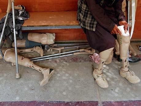 Afghane mit künstlichen Beinen, AP