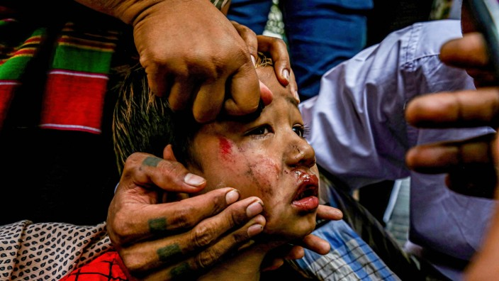 February 26, 2021, Mandalay, Myanmar: (EDITORS NOTE: Image contains graphic content) A bruised child slingshoted by sol